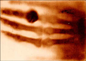Roentgen Discovers X-Rays image